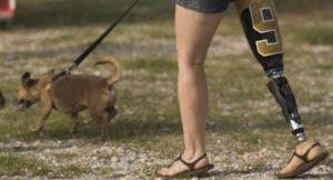 Extremidad adaptada por los científicos para realizar actividades humanas normales. (Foto: sitio web Motorica.org).